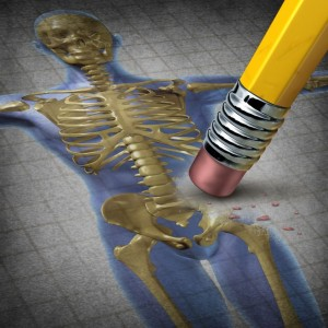 Add Osteoporosis To The Health Risks Of Sleep Apnea