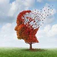 Chronic Sleep Issues Linked To Early Onset Of Alzheimers