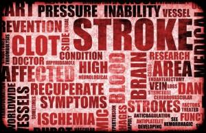 Brainstem Injuries From A Stroke May Lead To Sleep Apnea