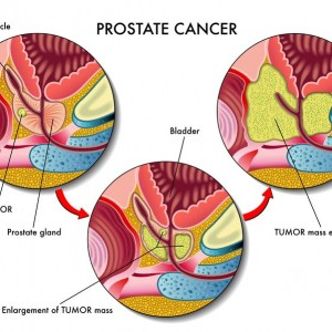 A Good Night's Sleep For Men May Keep Prostate Cancer Away